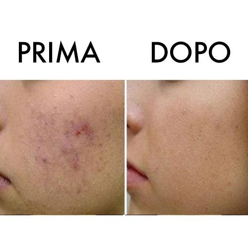 PRIMADOPO3