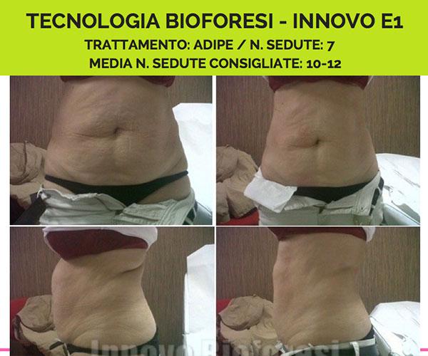 bioforesi-primadopo5